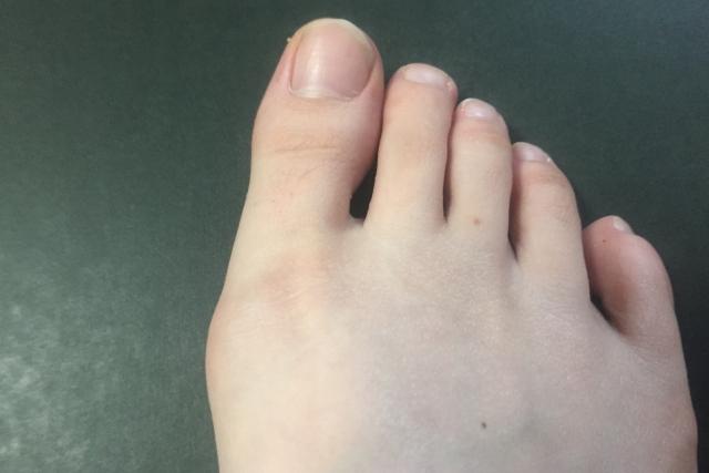 外反母趾の原因、治し方